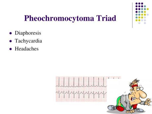 فئوکروموسایتوما عامل قابل درمان فشارخون