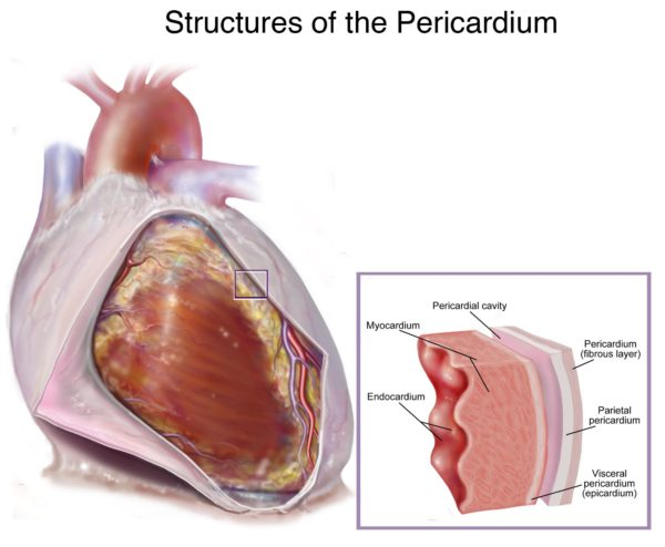 لوپوس و بیماری قلبی عروقی