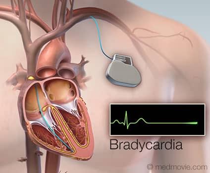 پیس میکر یا باطری قلبی چیست؟
