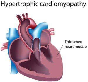 انواع بیماری های ژنتیکی قلبی