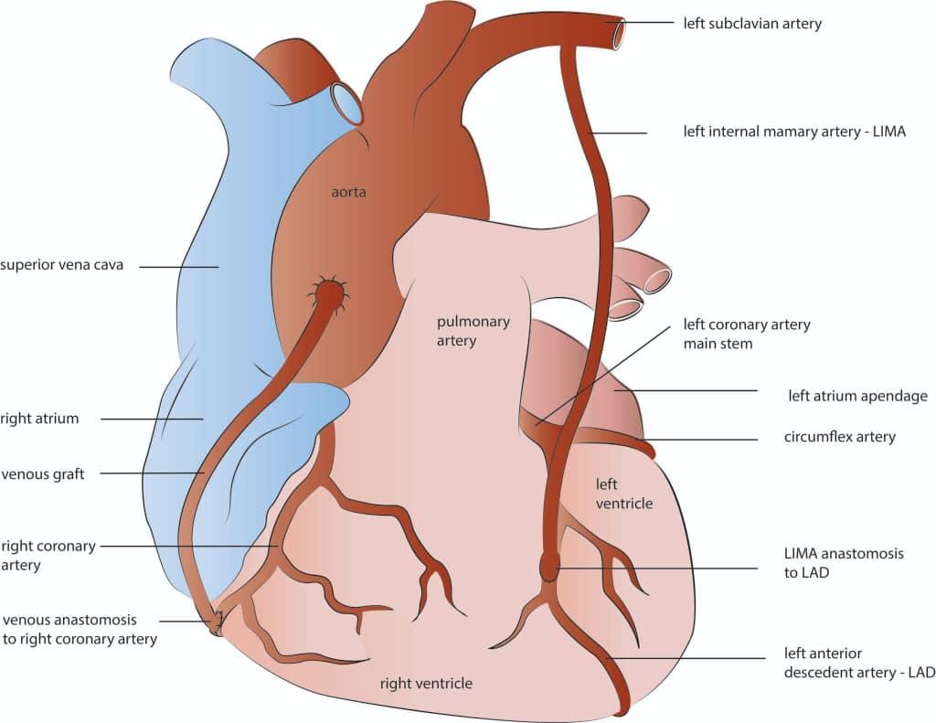 عمل جراحی پیوند رگ قلب