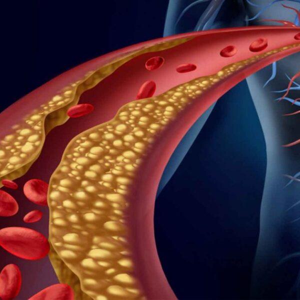روش های کنترل چربی خون